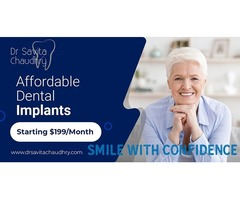 How To Have A Fantastic Dental Implants With Minimal Spending (Starting price $199)