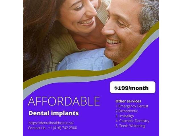 Dental Implant Treatment in Etobicoke | free-classifieds-canada.com