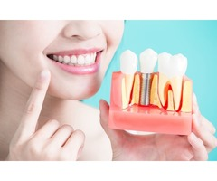 Dental Implants- The Change They Bring in Your Life