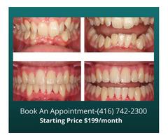 Why choose Dental Health Clinic Etobicoke for orthodontic braces?