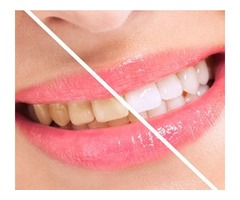 Teeth Whitening Dr. Hanif Asaria