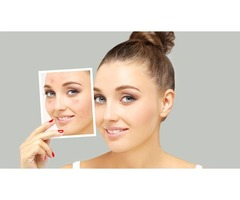 Lip Doctor | Beauty Treatments | free-classifieds-canada.com