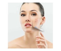 Lucere Acne Scarring Treatment in Edmonton